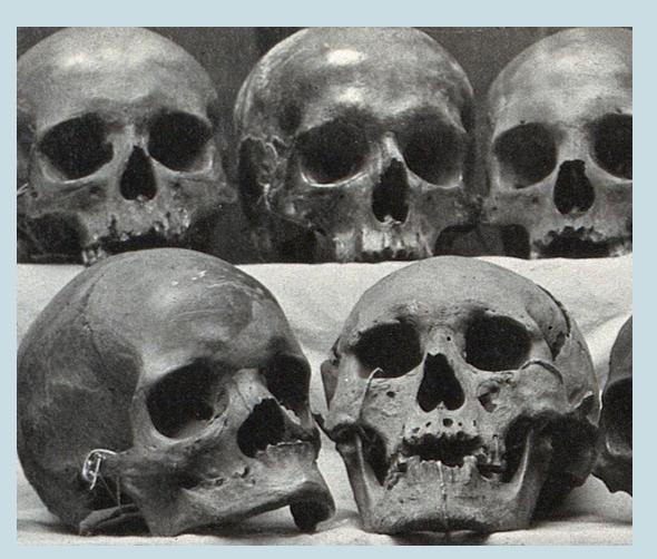 Skeletal diversity